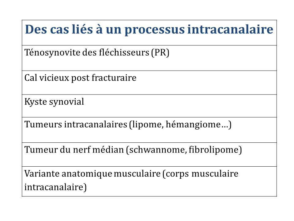 Des cas liés à un processus intracanalaire Ténosynovite des fléchisseurs (PR) Cal vicieux post fracturaire Kyste synovial Tumeurs intracanalaires (lip