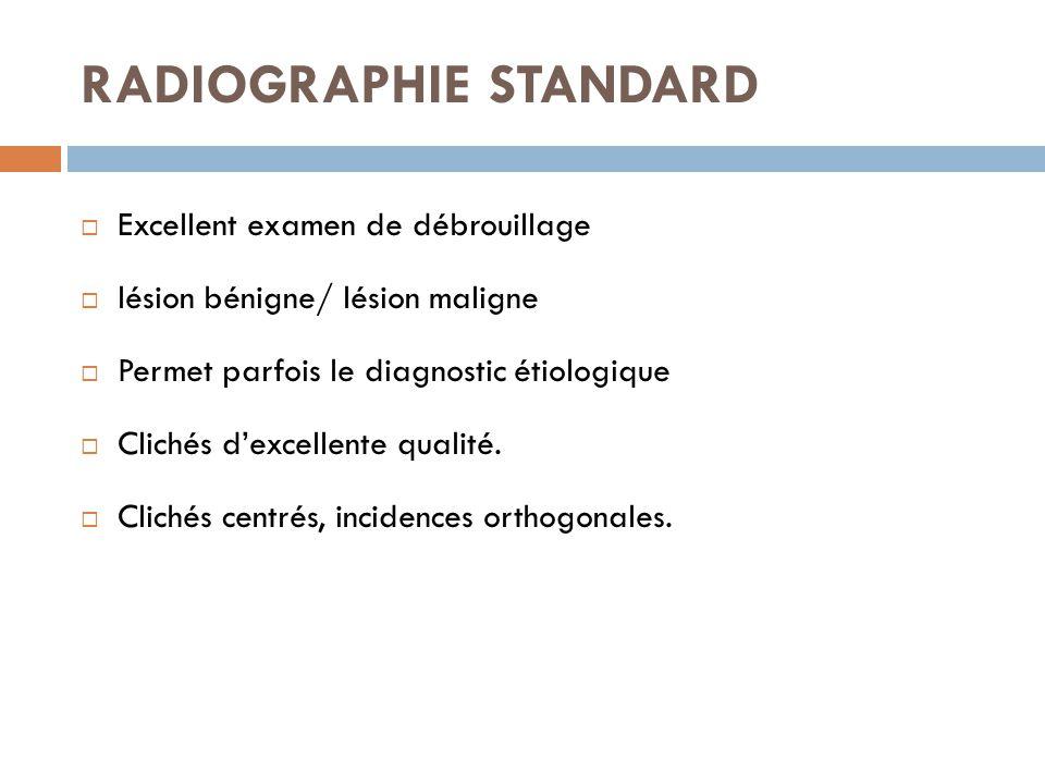 RADIOGRAPHIE STANDARD  Excellent examen de débrouillage  lésion bénigne/ lésion maligne  Permet parfois le diagnostic étiologique  Clichés d'excel
