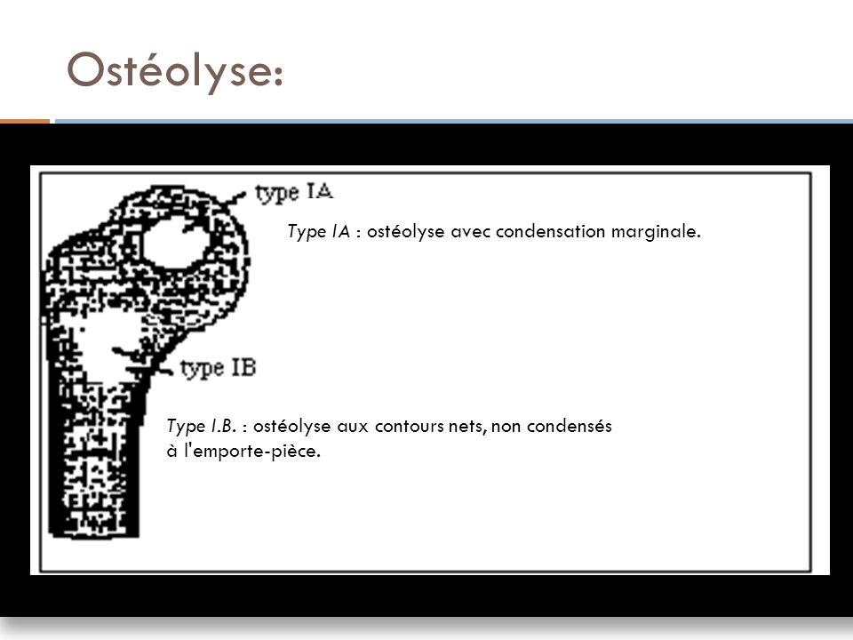 Ostéolyse: Type IA : ostéolyse avec condensation marginale. Type I.B. : ostéolyse aux contours nets, non condensés à l'emporte-pièce.