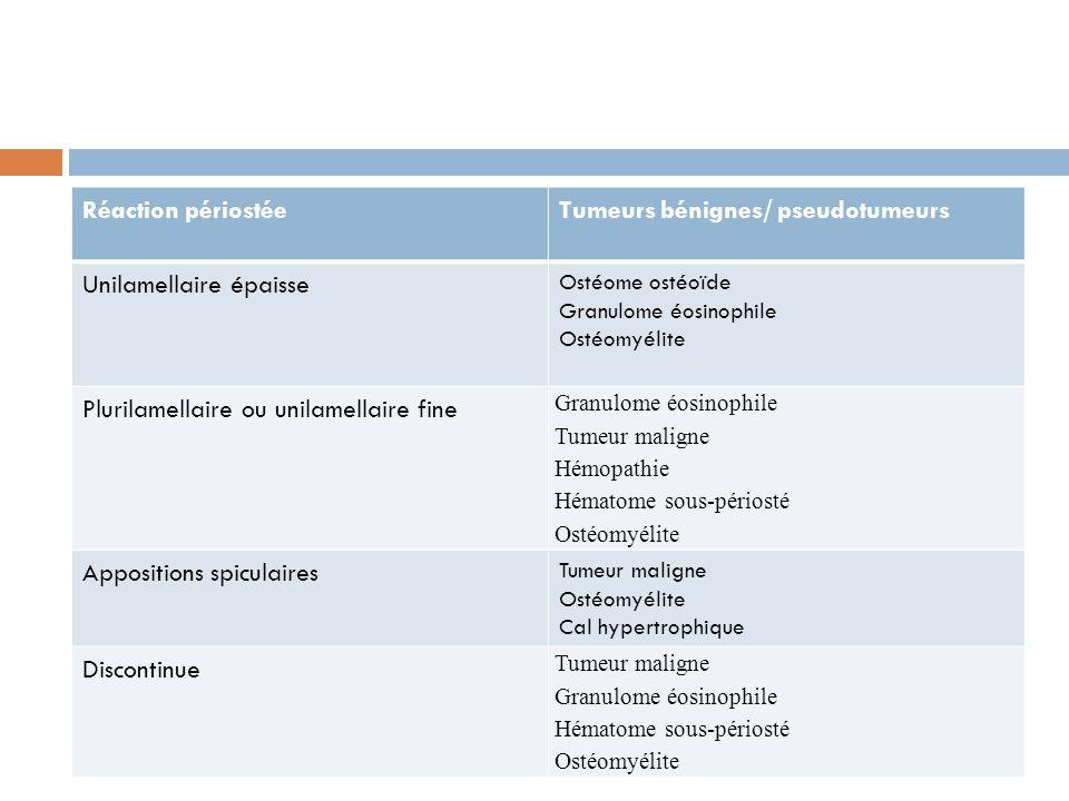 Réaction périostéeTumeurs bénignes/ pseudotumeurs Unilamellaire épaisse Ostéome ostéoïde Granulome éosinophile Ostéomyélite Plurilamellaire ou unilame