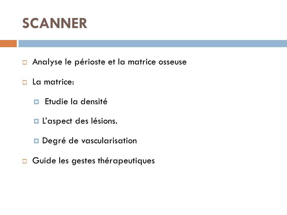 SCANNER  Analyse le périoste et la matrice osseuse  La matrice:  Etudie la densité  L'aspect des lésions.  Degré de vascularisation  Guide les g