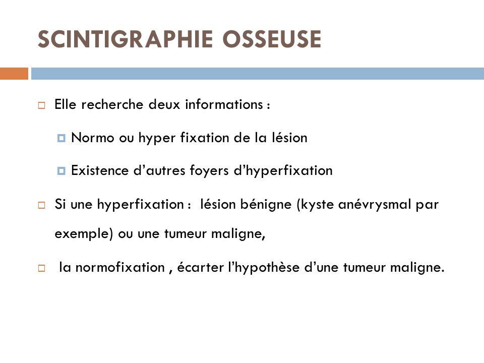 SCINTIGRAPHIE OSSEUSE  Elle recherche deux informations :  Normo ou hyper fixation de la lésion  Existence d'autres foyers d'hyperfixation  Si une