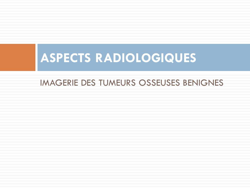 IMAGERIE DES TUMEURS OSSEUSES BENIGNES ASPECTS RADIOLOGIQUES