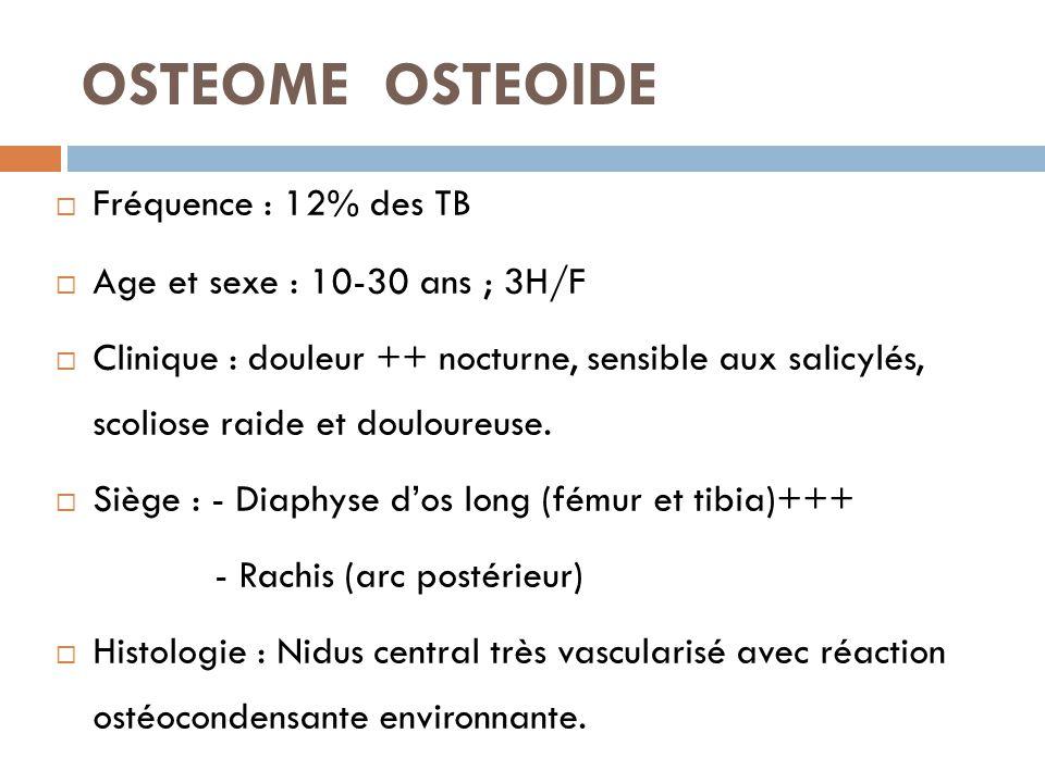 OSTEOME OSTEOIDE  Fréquence : 12% des TB  Age et sexe : 10-30 ans ; 3H/F  Clinique : douleur ++ nocturne, sensible aux salicylés, scoliose raide et