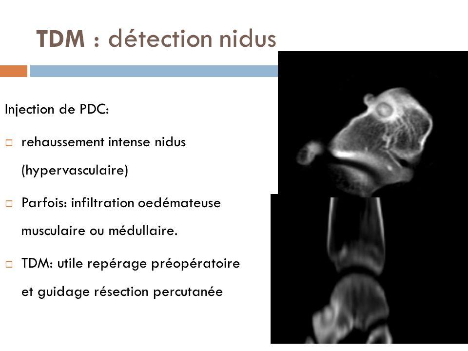 TDM : détection nidus Injection de PDC:  rehaussement intense nidus (hypervasculaire)  Parfois: infiltration oedémateuse musculaire ou médullaire. 