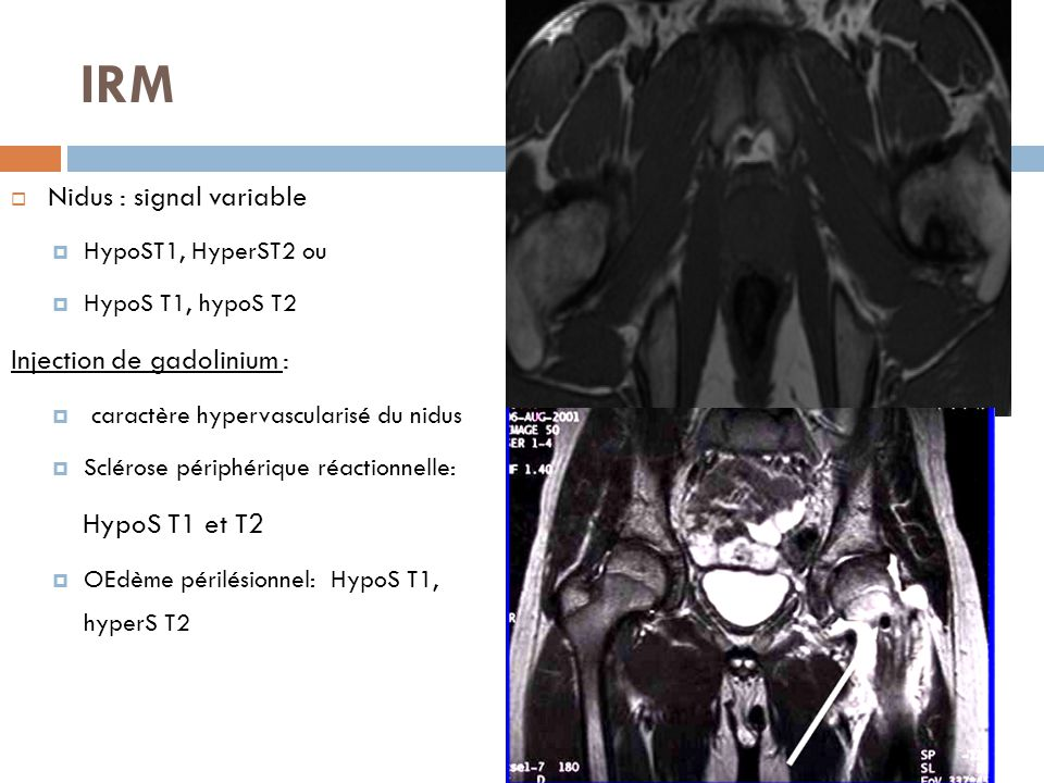IRM  Nidus : signal variable  HypoST1, HyperST2 ou  HypoS T1, hypoS T2 Injection de gadolinium :  caractère hypervascularisé du nidus  Sclérose p