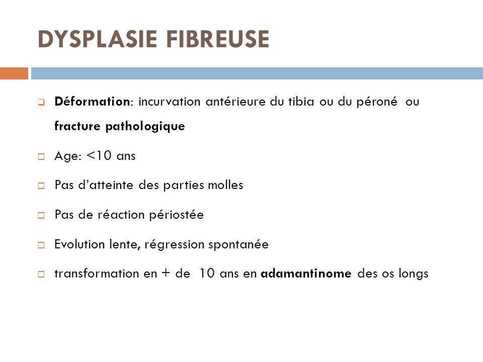 DYSPLASIE FIBREUSE  Déformation: incurvation antérieure du tibia ou du péroné ou fracture pathologique  Age: <10 ans  Pas d'atteinte des parties mo