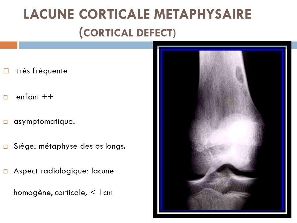 LACUNE CORTICALE METAPHYSAIRE ( CORTICAL DEFECT)  très fréquente  enfant ++  asymptomatique.  Siège: métaphyse des os longs.  Aspect radiologique