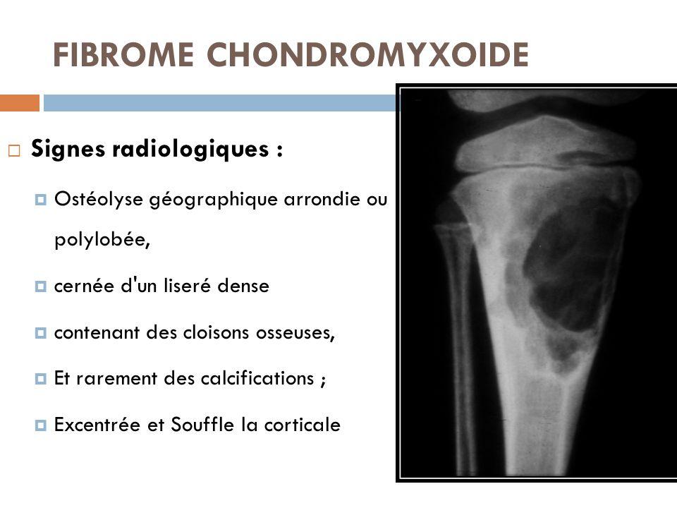 FIBROME CHONDROMYXOIDE  Signes radiologiques :  Ostéolyse géographique arrondie ou polylobée,  cernée d'un liseré dense  contenant des cloisons os
