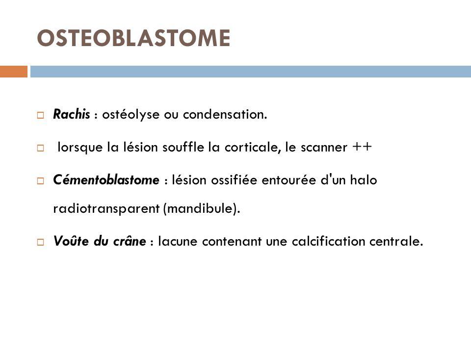 OSTEOBLASTOME  Rachis : ostéolyse ou condensation.  lorsque la lésion souffle la corticale, le scanner ++  Cémentoblastome : lésion ossifiée entour