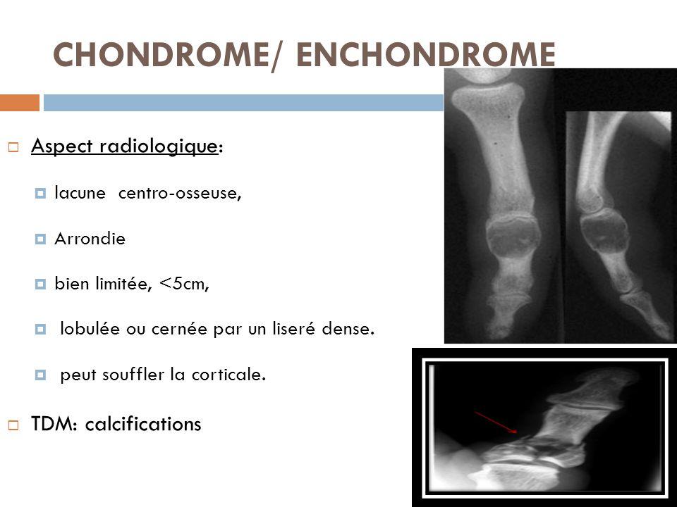 CHONDROME/ ENCHONDROME  Aspect radiologique:  lacune centro-osseuse,  Arrondie  bien limitée, <5cm,  lobulée ou cernée par un liseré dense.  peu