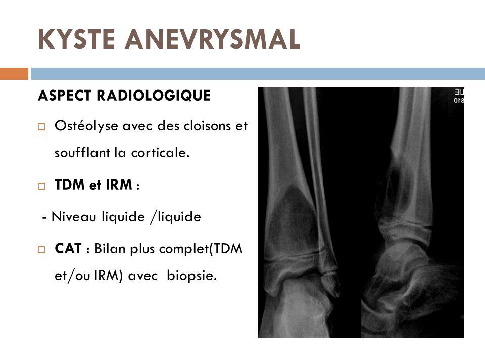 KYSTE ANEVRYSMAL ASPECT RADIOLOGIQUE  Ostéolyse avec des cloisons et soufflant la corticale.  TDM et IRM : - Niveau liquide /liquide  CAT : Bilan p