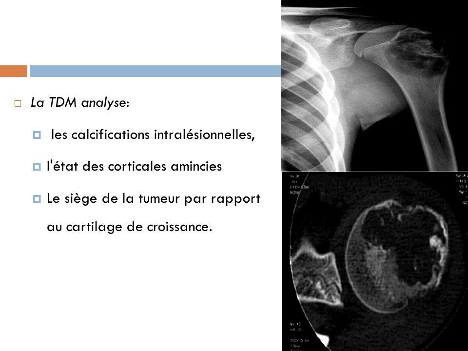 La TDM analyse:  les calcifications intralésionnelles,  l'état des corticales amincies  Le siège de la tumeur par rapport au cartilage de croissa