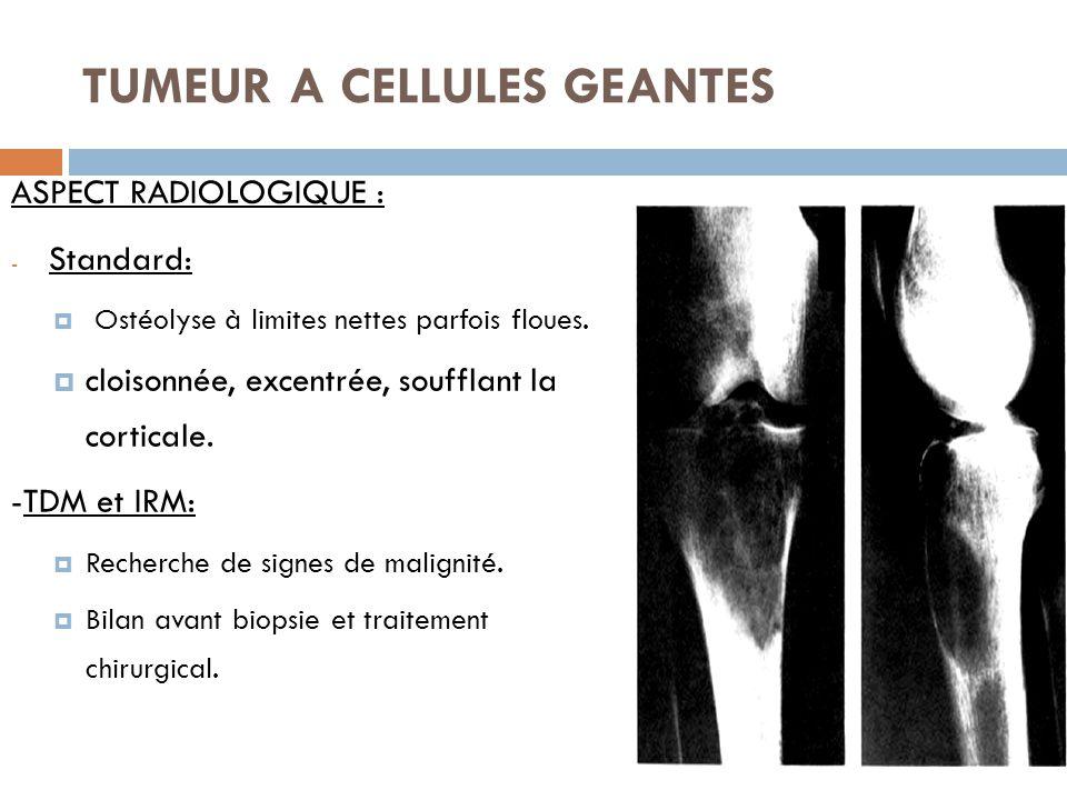 TUMEUR A CELLULES GEANTES ASPECT RADIOLOGIQUE : - Standard:  Ostéolyse à limites nettes parfois floues.  cloisonnée, excentrée, soufflant la cortica