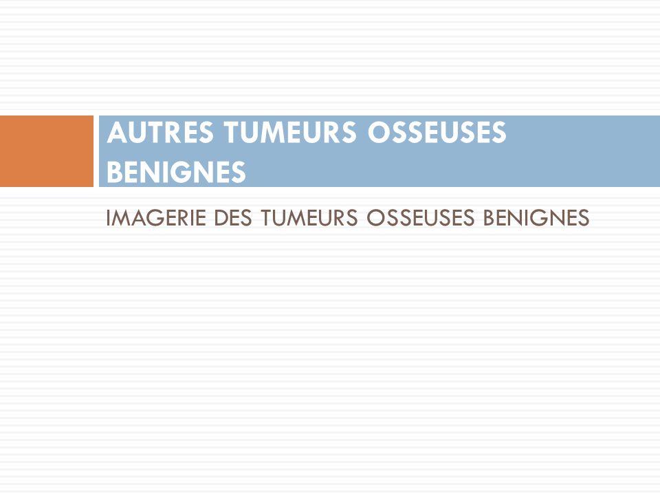 IMAGERIE DES TUMEURS OSSEUSES BENIGNES AUTRES TUMEURS OSSEUSES BENIGNES