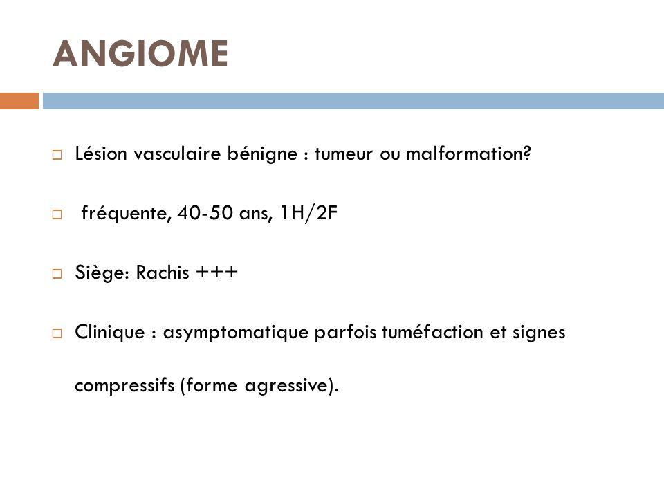 ANGIOME  Lésion vasculaire bénigne : tumeur ou malformation?  fréquente, 40-50 ans, 1H/2F  Siège: Rachis +++  Clinique : asymptomatique parfois tu