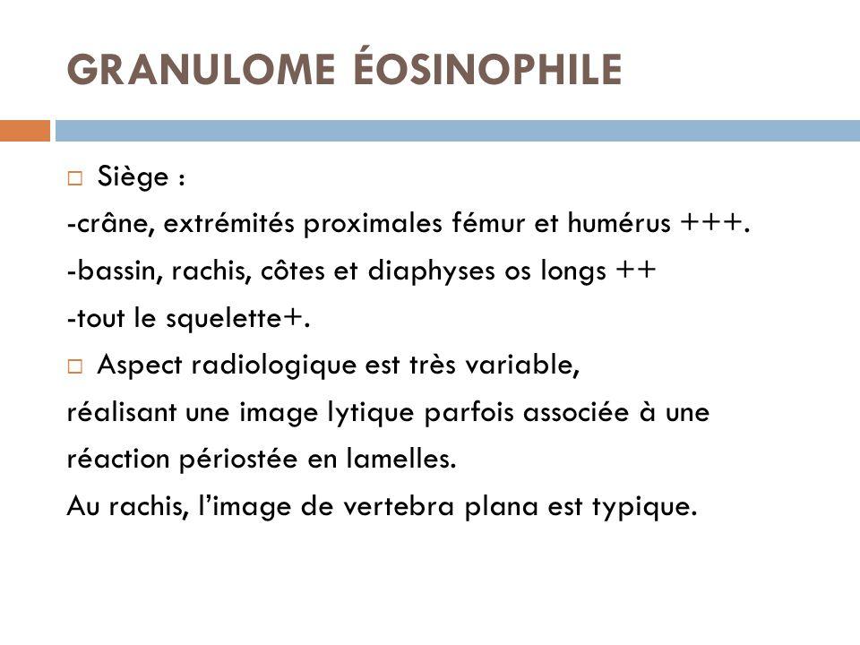 GRANULOME ÉOSINOPHILE  Siège : -crâne, extrémités proximales fémur et humérus +++. -bassin, rachis, côtes et diaphyses os longs ++ -tout le squelette