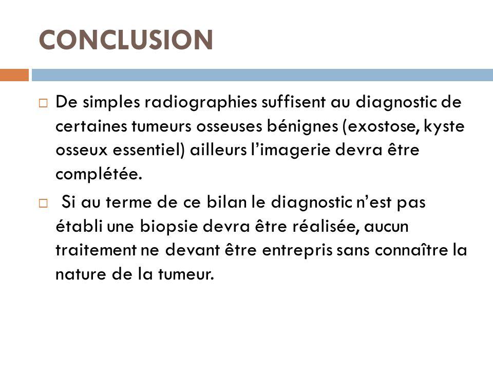 CONCLUSION  De simples radiographies suffisent au diagnostic de certaines tumeurs osseuses bénignes (exostose, kyste osseux essentiel) ailleurs l'ima