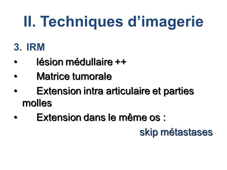 II. Techniques d'imagerie 3.IRM lésion médullaire ++lésion médullaire ++ Matrice tumoraleMatrice tumorale Extension intra articulaire et parties molle