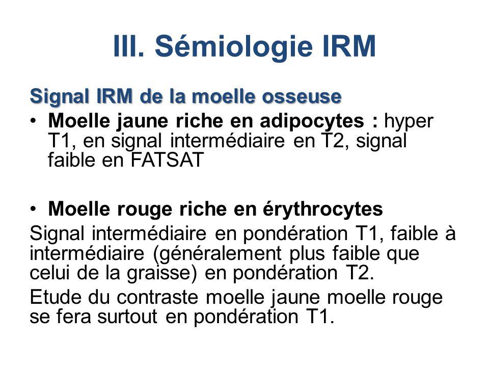 III. Sémiologie IRM Signal IRM de la moelle osseuse Moelle jaune riche en adipocytes : hyper T1, en signal intermédiaire en T2, signal faible en FATSA