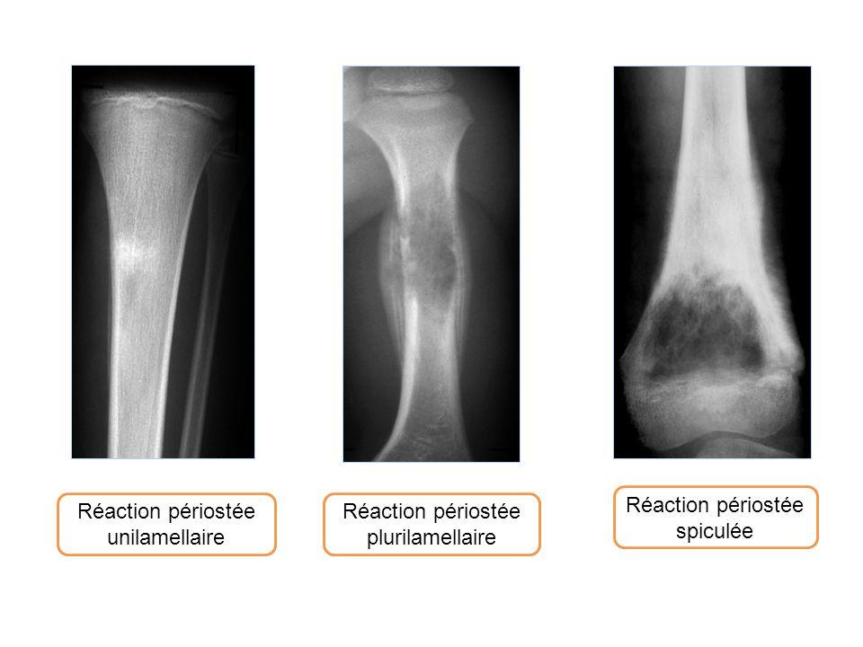 Réaction périostée unilamellaire Réaction périostée spiculée Réaction périostée plurilamellaire