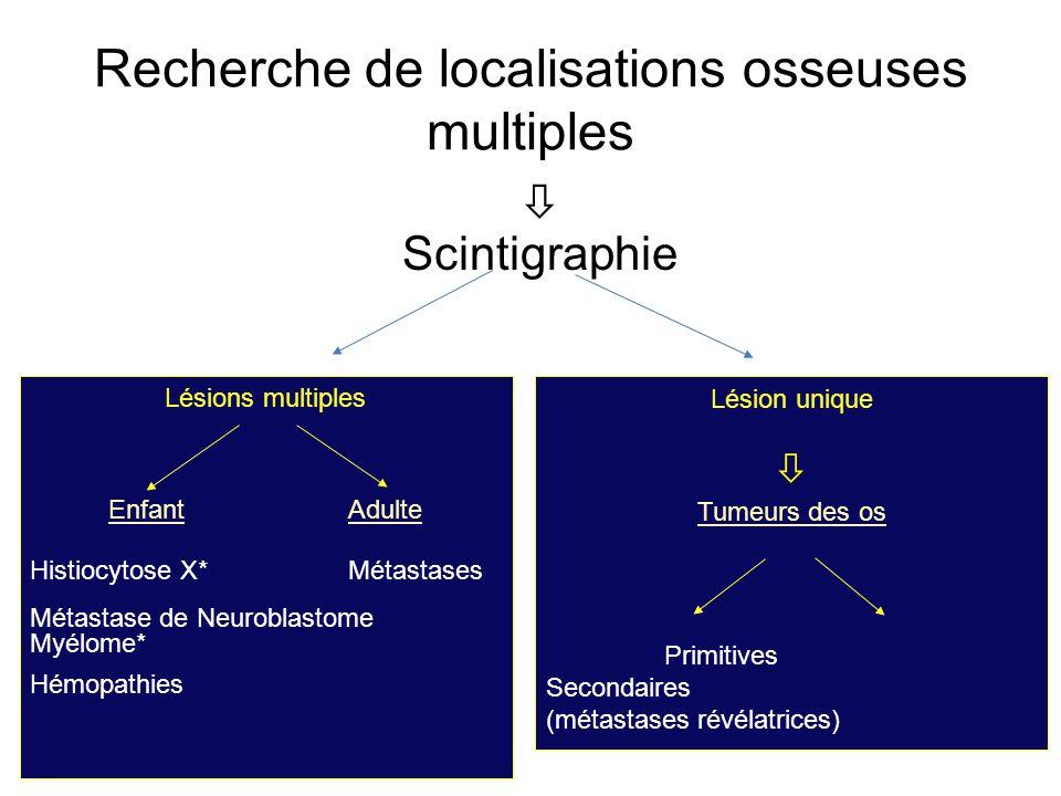  Scintigraphie Lésions multiples Enfant Adulte Histiocytose X*Métastases Métastase de Neuroblastome Myélome* Hémopathies Lésion unique  Tumeurs des os Primitives Secondaires (métastases révélatrices) Recherche de localisations osseuses multiples