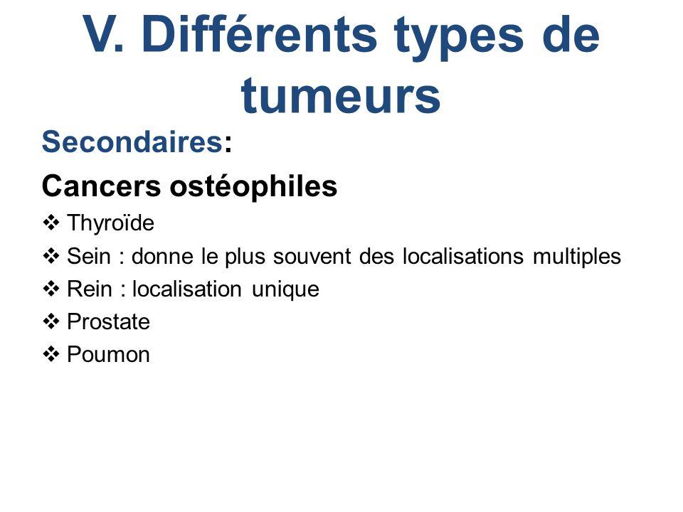 V. Différents types de tumeurs Secondaires: Cancers ostéophiles  Thyroïde  Sein : donne le plus souvent des localisations multiples  Rein : localis