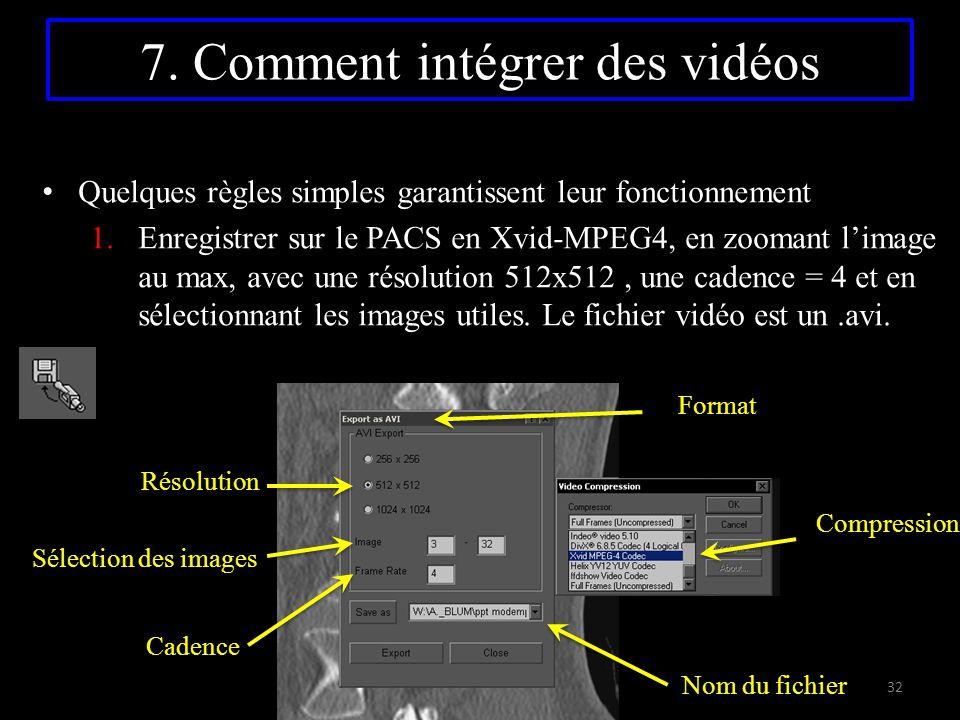 7. Comment intégrer des vidéos Quelques règles simples garantissent leur fonctionnement 1.Enregistrer sur le PACS en Xvid-MPEG4, en zoomant l'image au