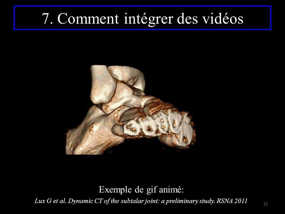7. Comment intégrer des vidéos Exemple de gif animé: Lux G et al. Dynamic CT of the subtalar joint: a preliminary study. RSNA 2011 37