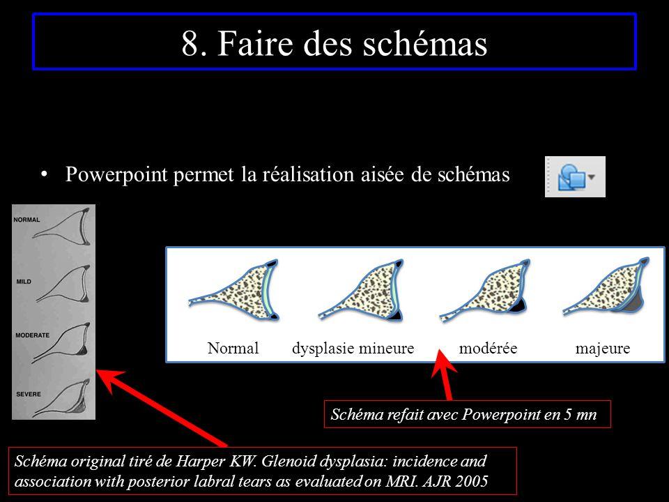 8. Faire des schémas Powerpoint permet la réalisation aisée de schémas Normal dysplasie mineure modérée majeure Schéma refait avec Powerpoint en 5 mn