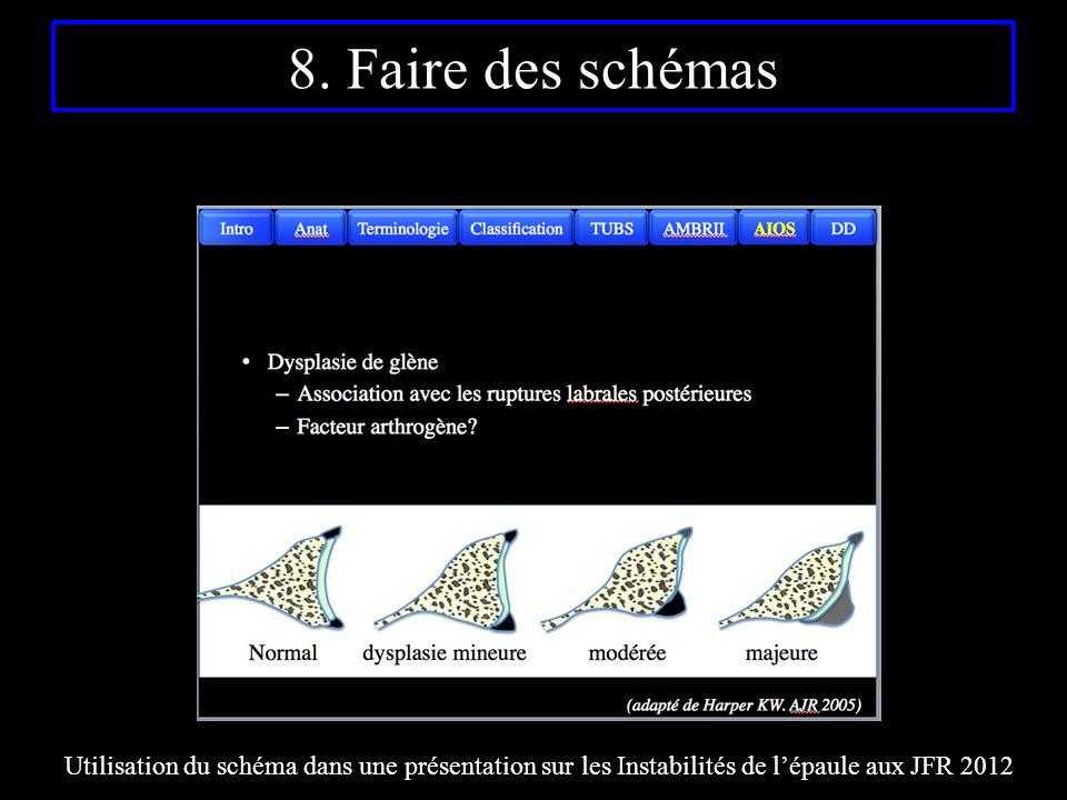 8. Faire des schémas Utilisation du schéma dans une présentation sur les Instabilités de l'épaule aux JFR 2012