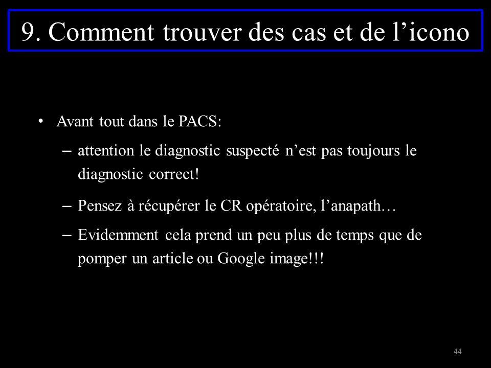 9. Comment trouver des cas et de l'icono Avant tout dans le PACS: – attention le diagnostic suspecté n'est pas toujours le diagnostic correct! – Pense