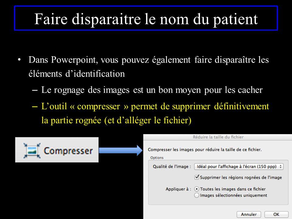 Faire disparaitre le nom du patient Dans Powerpoint, vous pouvez également faire disparaître les éléments d'identification – Le rognage des images est