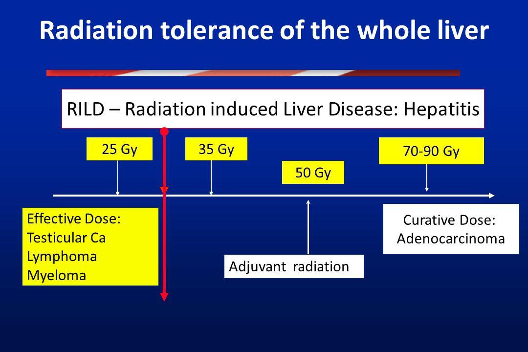 Radiation tolerance of the whole liver 25 Gy35 Gy 70-90 Gy Effective Dose: Testicular Ca Lymphoma Myeloma Curative Dose: Adenocarcinoma RILD – Radiati
