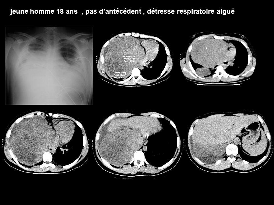 Traitement TGNS: –Chimiothérapie première (cisplatine) en urgence ++++ –Chirurgie d'exérèse Séminomes: –Chirurgie d'exérèse première –Suivie d'une radiothérapie –± chimiothérapie néoadjuvante