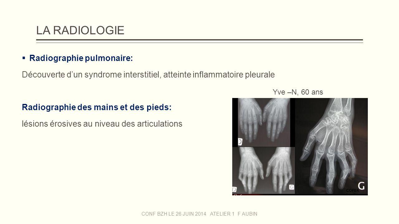 LA RADIOLOGIE  Radiographie pulmonaire: Découverte d'un syndrome interstitiel, atteinte inflammatoire pleurale Radiographie des mains et des pieds: l