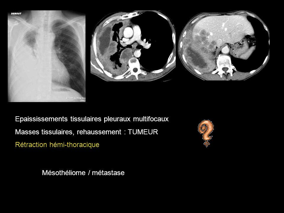 Epaississements tissulaires pleuraux multifocaux Masses tissulaires, rehaussement : TUMEUR Rétraction hémi-thoracique Mésothéliome / métastase