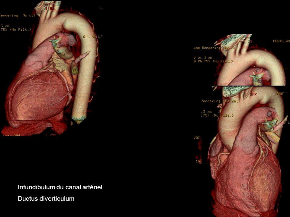 Infundibulum du canal artériel Ductus diverticulum