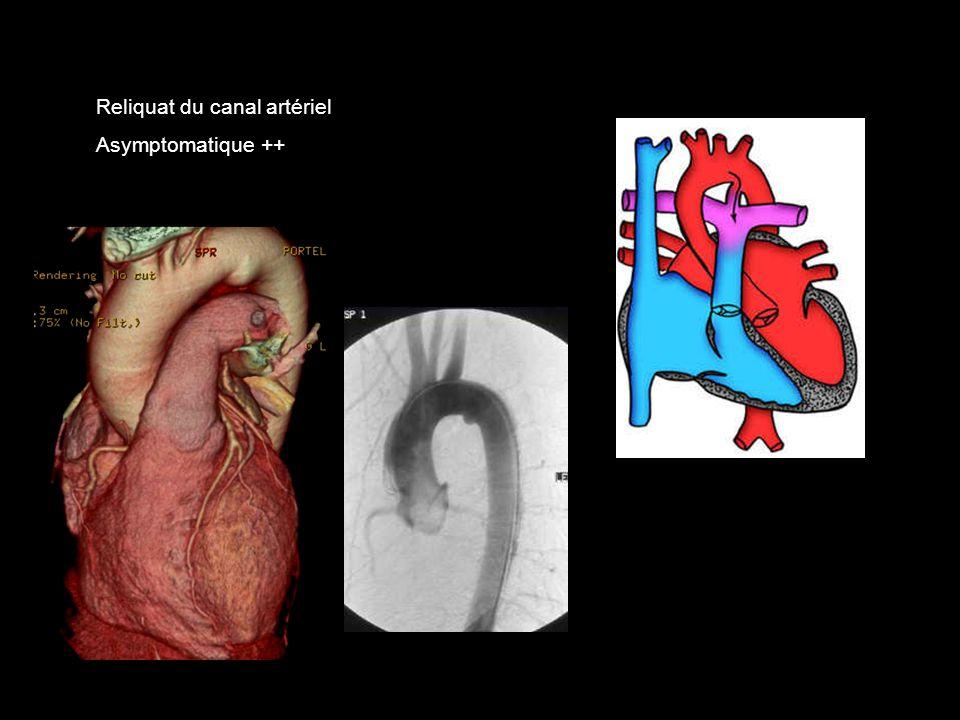 Reliquat du canal artériel Asymptomatique ++