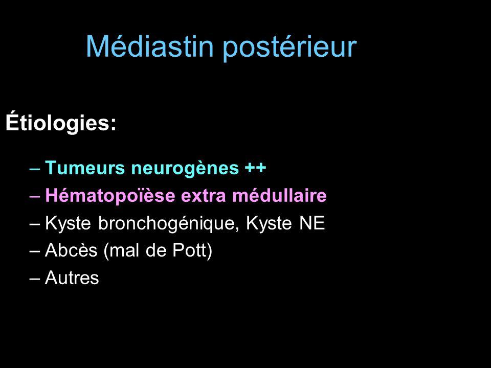 Médiastin postérieur Étiologies: –Tumeurs neurogènes ++ –Hématopoïèse extra médullaire –Kyste bronchogénique, Kyste NE –Abcès (mal de Pott) –Autres