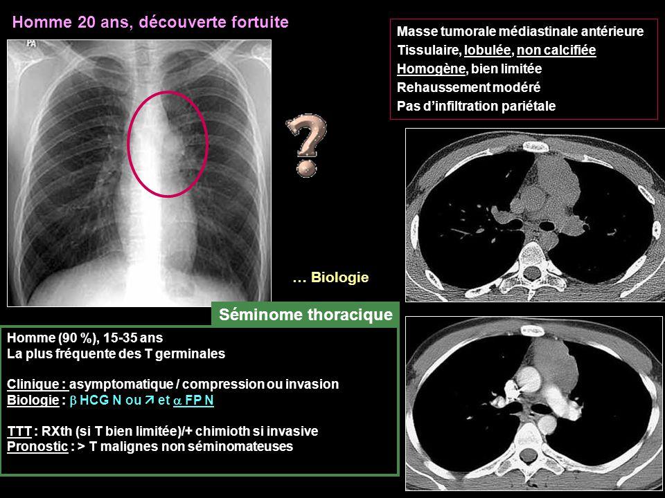 Homme 20 ans, découverte fortuite Masse tumorale médiastinale antérieure Tissulaire, lobulée, non calcifiée Homogène, bien limitée Rehaussement modéré Pas d'infiltration pariétale Homme (90 %), 15-35 ans La plus fréquente des T germinales Clinique : asymptomatique / compression ou invasion Biologie :  HCG N ou  et  FP N TTT : RXth (si T bien limitée)/+ chimioth si invasive Pronostic : > T malignes non séminomateuses Séminome thoracique … Biologie