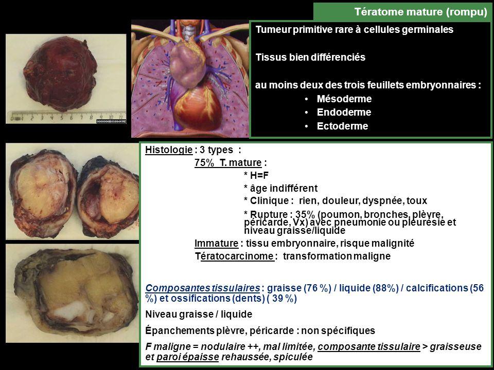 Tumeur primitive rare à cellules germinales Tissus bien différenciés au moins deux des trois feuillets embryonnaires : Mésoderme Endoderme Ectoderme Tératome mature (rompu) Histologie : 3 types : 75% T.