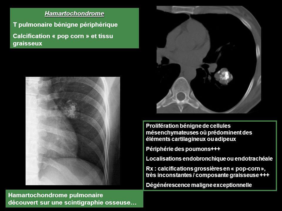 Hamartochondrome pulmonaire découvert sur une scintigraphie osseuse… Prolifération bénigne de cellules mésenchymateuses où prédominent des éléments cartilagineux ou adipeux Périphérie des poumons+++ Localisations endobronchique ou endotrachéale Rx : calcifications grossières en « pop-corn », très inconstantes / composante graisseuse +++ Dégénérescence maligne exceptionnelle Hamartochondrome T pulmonaire bénigne périphérique Calcification « pop corn » et tissu graisseux