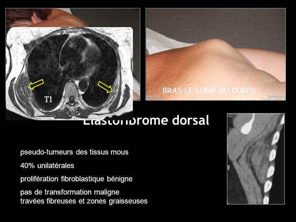 BRAS LE LONG DU CORPSBRAS EN ABDUCTION pseudo-tumeurs des tissus mous 40% unilatérales prolifération fibroblastique bénigne pas de transformation maligne travées fibreuses et zones graisseuses Elastofibrome dorsal
