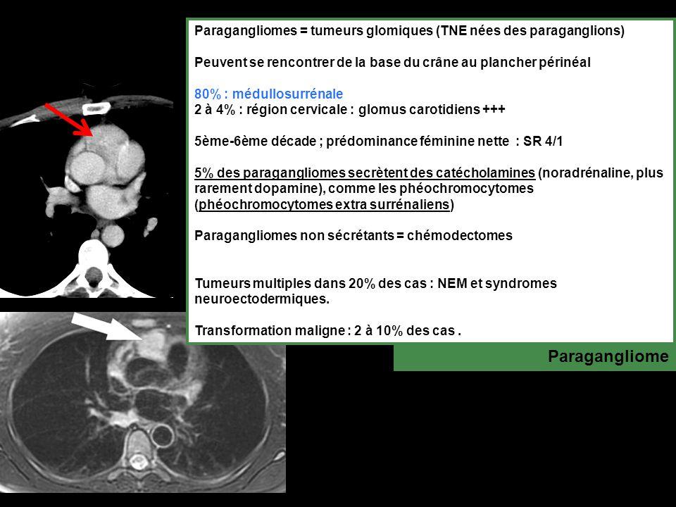 Paragangliomes = tumeurs glomiques (TNE nées des paraganglions) Peuvent se rencontrer de la base du crâne au plancher périnéal 80% : médullosurrénale 2 à 4% : région cervicale : glomus carotidiens +++ 5ème-6ème décade ; prédominance féminine nette : SR 4/1 5% des paragangliomes secrètent des catécholamines (noradrénaline, plus rarement dopamine), comme les phéochromocytomes (phéochromocytomes extra surrénaliens) Paragangliomes non sécrétants = chémodectomes Tumeurs multiples dans 20% des cas : NEM et syndromes neuroectodermiques.