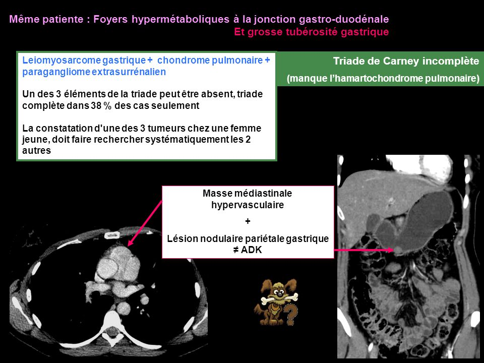Même patiente : Foyers hypermétaboliques à la jonction gastro-duodénale Et grosse tubérosité gastrique Leiomyosarcome gastrique + chondrome pulmonaire + paragangliome extrasurrénalien Un des 3 éléments de la triade peut être absent, triade complète dans 38 % des cas seulement La constatation d une des 3 tumeurs chez une femme jeune, doit faire rechercher systématiquement les 2 autres Triade de Carney incomplète (manque l'hamartochondrome pulmonaire) Masse médiastinale hypervasculaire + Lésion nodulaire pariétale gastrique ≠ ADK