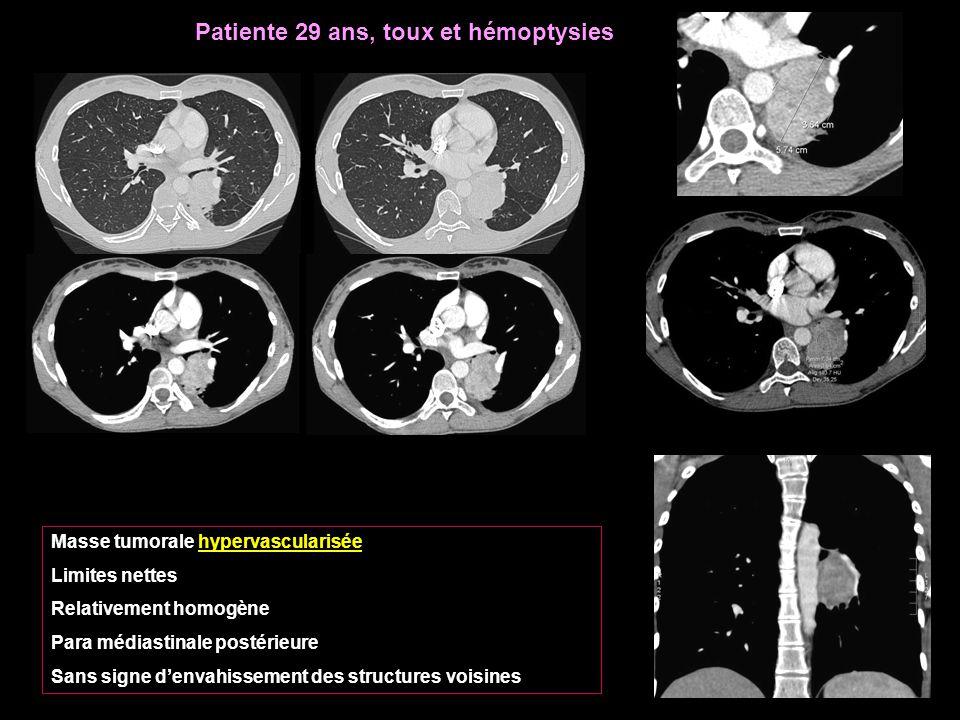 Patiente 29 ans, toux et hémoptysies Masse tumorale hypervascularisée Limites nettes Relativement homogène Para médiastinale postérieure Sans signe d'envahissement des structures voisines