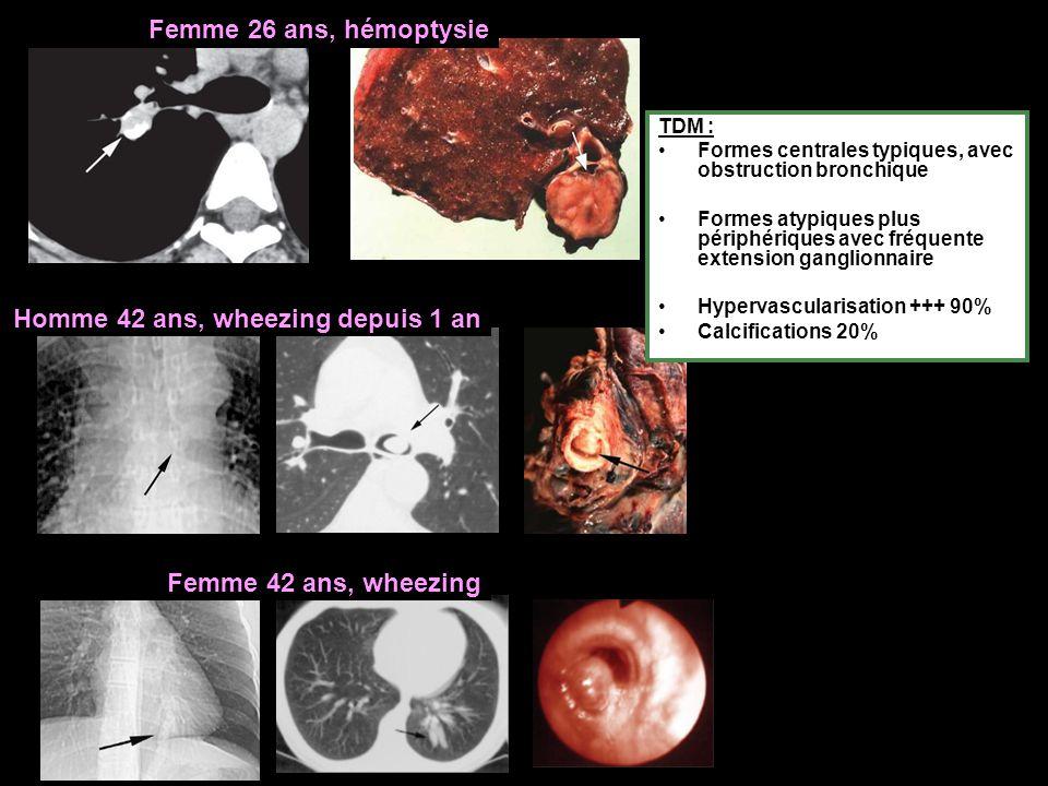 Femme 26 ans, hémoptysie Homme 42 ans, wheezing depuis 1 an Femme 42 ans, wheezing TDM : Formes centrales typiques, avec obstruction bronchique Formes atypiques plus périphériques avec fréquente extension ganglionnaire Hypervascularisation +++ 90% Calcifications 20%
