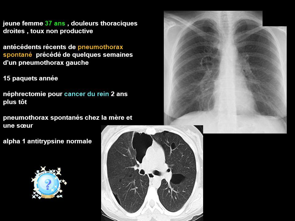jeune femme 37 ans, douleurs thoraciques droites, toux non productive antécédents récents de pneumothorax spontané précédé de quelques semaines d un pneumothorax gauche 15 paquets année néphrectomie pour cancer du rein 2 ans plus tôt pneumothorax spontanés chez la mère et une sœur alpha 1 antitrypsine normale