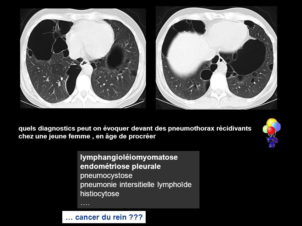 quels diagnostics peut on évoquer devant des pneumothorax récidivants chez une jeune femme, en âge de procréer lymphangioléiomyomatose endométriose pleurale pneumocystose pneumonie intersitielle lymphoïde histiocytose ….